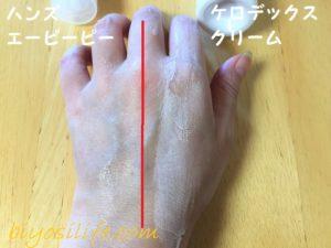 ケロデックスクリーム×ハンズエーピーピー比較4
